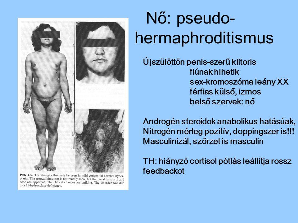 Nő: pseudo- hermaphroditismus