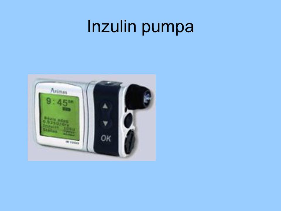 Inzulin pumpa
