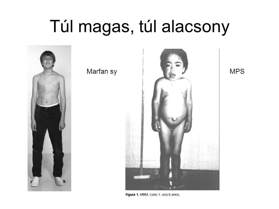 Túl magas, túl alacsony Marfan sy MPS