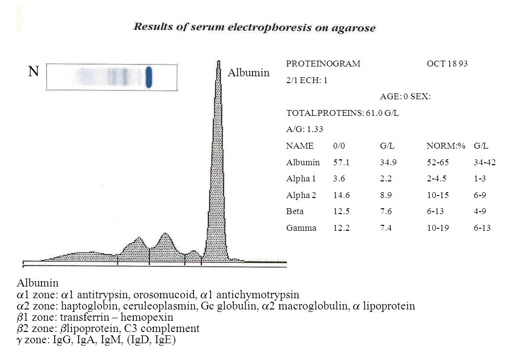 PROTEINOGRAM OCT 18 93 2/1 ECH: 1. AGE: 0 SEX: TOTAL PROTEINS: 61.0 G/L. A/G: 1.33. NAME 0/0 G/L NORM:% G/L.