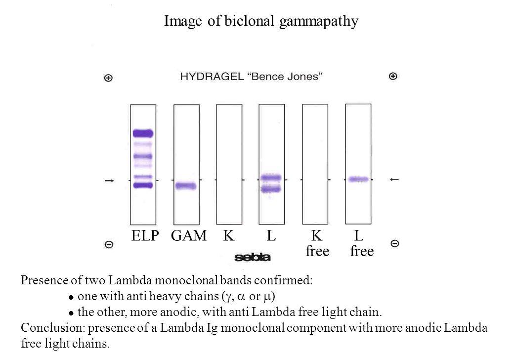 Image of biclonal gammapathy