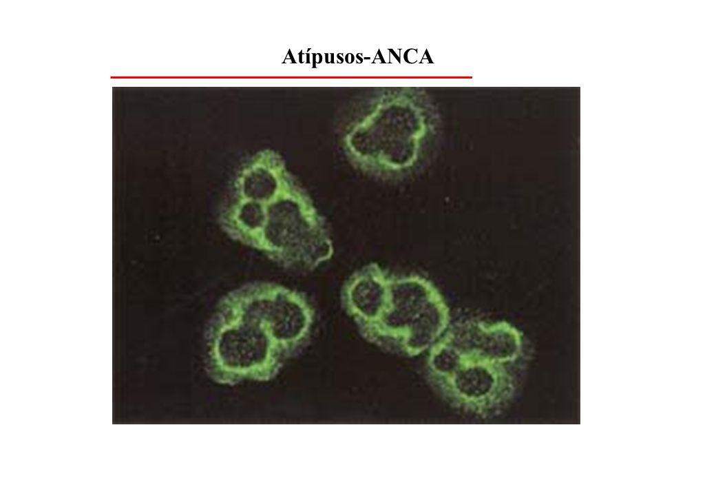 Atípusos-ANCA
