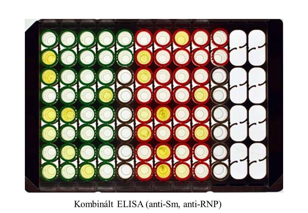 Kombinált ELISA (anti-Sm, anti-RNP)