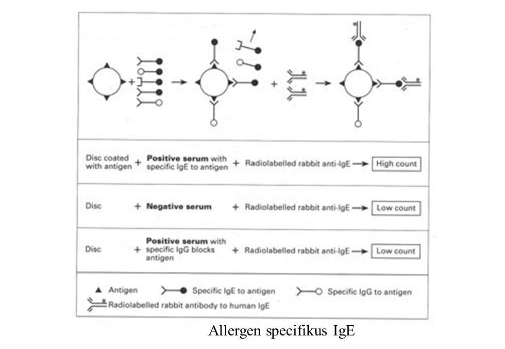 Allergen specifikus IgE