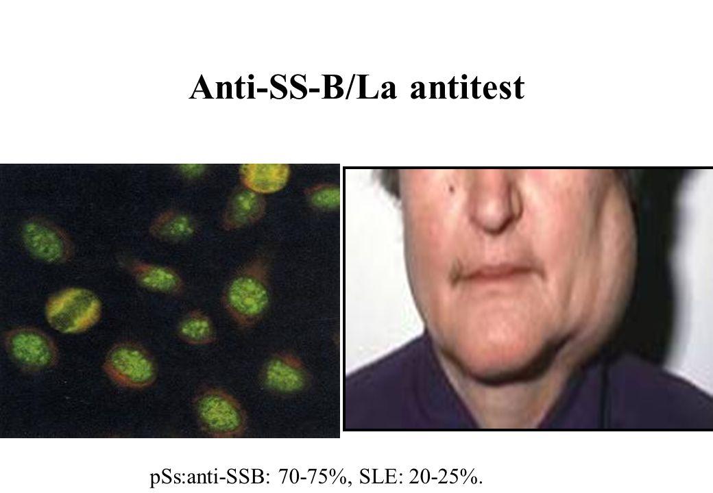 Anti-SS-B/La antitest