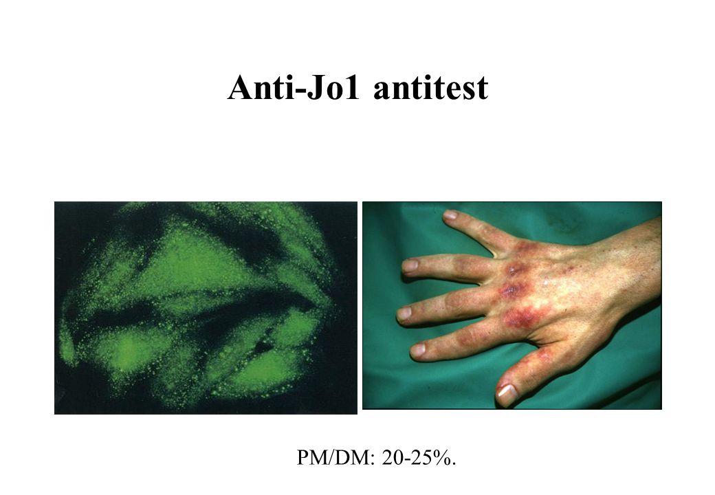 Anti-Jo1 antitest PM/DM: 20-25%.