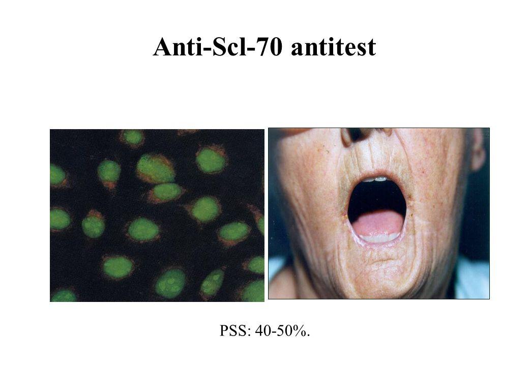 Anti-Scl-70 antitest PSS: 40-50%.