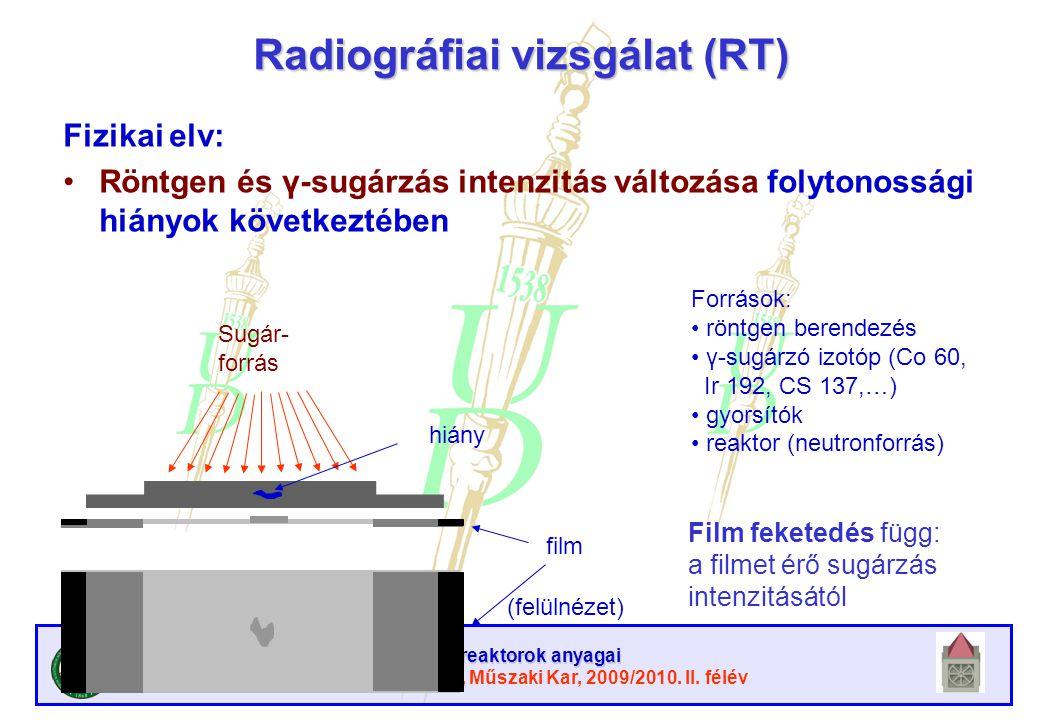 Radiográfiai vizsgálat (RT)