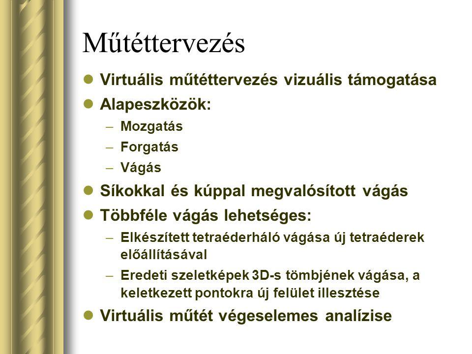 Műtéttervezés Virtuális műtéttervezés vizuális támogatása