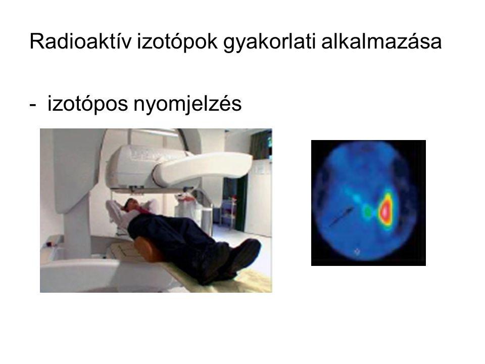 Radioaktív izotópok gyakorlati alkalmazása