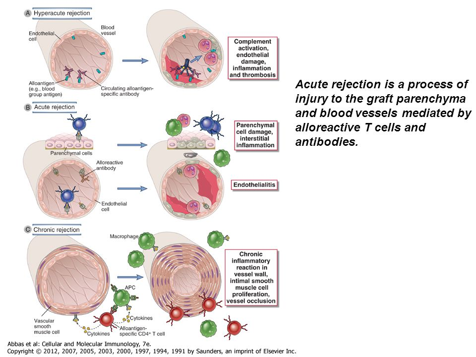 Acute rejection is a process of injury to the graft parenchyma and blood vessels mediated by alloreactive T cells and antibodies.