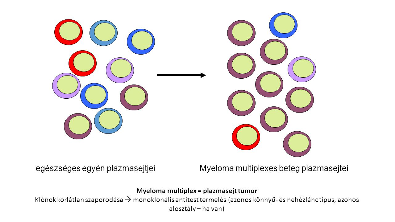 Myeloma multiplex = plazmasejt tumor