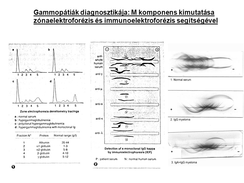 Gammopátiák diagnosztikája: M komponens kimutatása