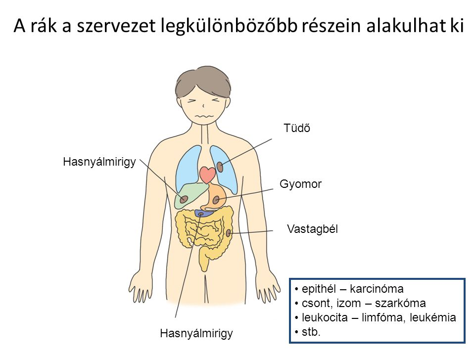 A rák a szervezet legkülönbözőbb részein alakulhat ki