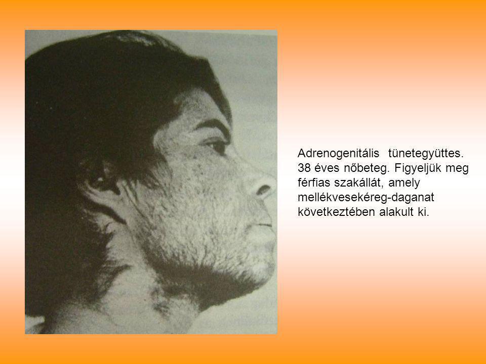 Adrenogenitális tünetegyüttes.