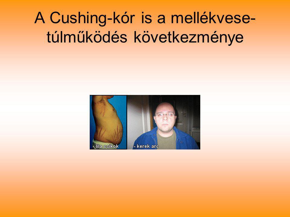 A Cushing-kór is a mellékvese-túlműködés következménye