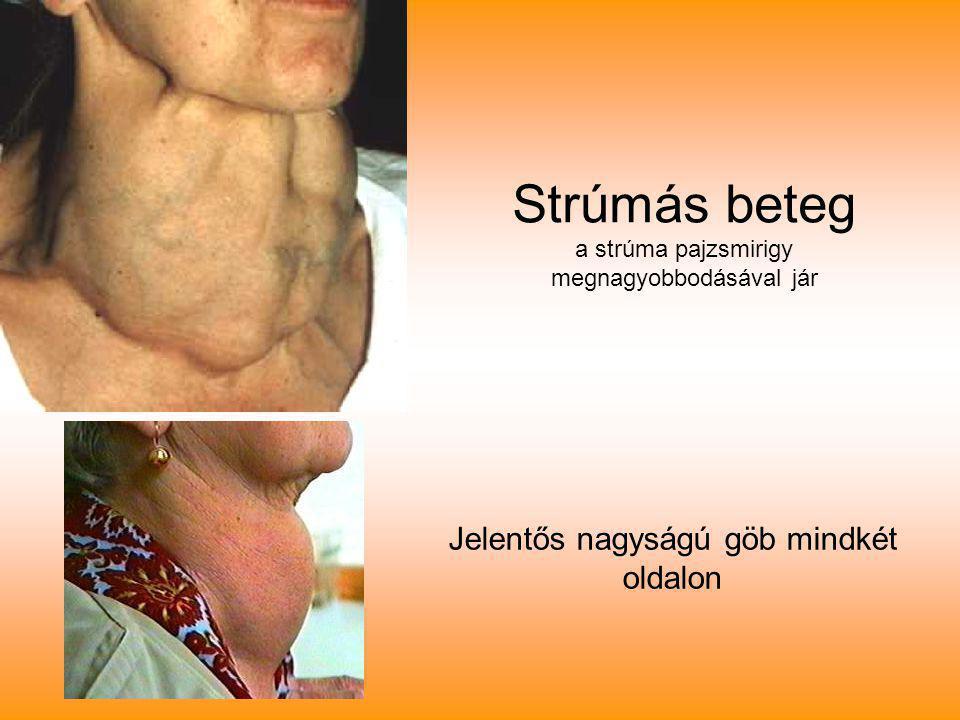 Strúmás beteg a strúma pajzsmirigy megnagyobbodásával jár
