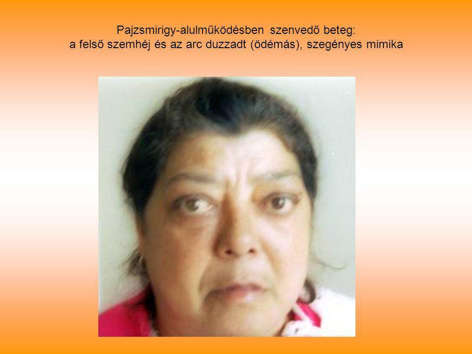 Pajzsmirigy-alulműködésben szenvedő beteg: a felső szemhéj és az arc duzzadt (ödémás), szegényes mimika