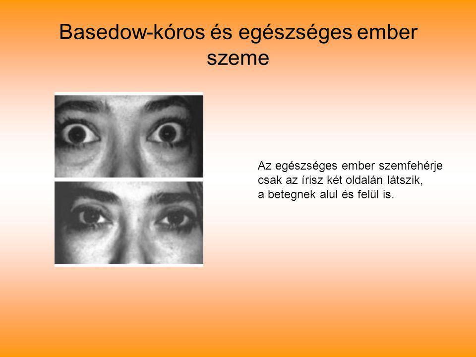 Basedow-kóros és egészséges ember szeme