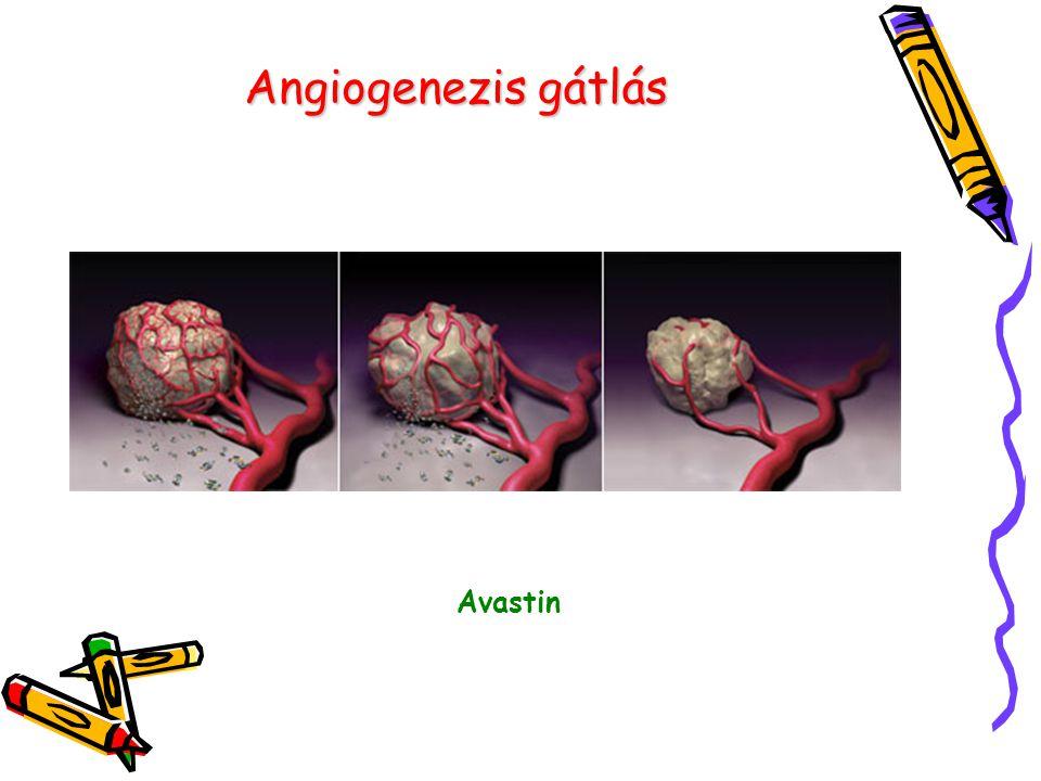 Angiogenezis gátlás Avastin