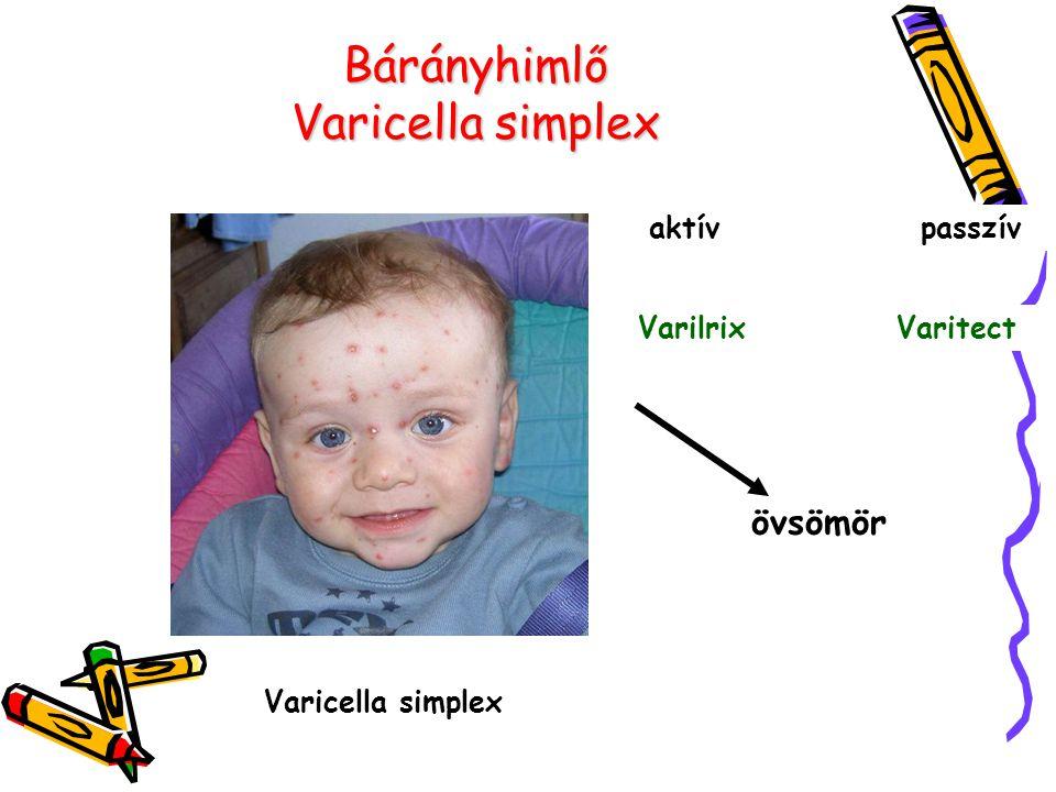 Bárányhimlő Varicella simplex