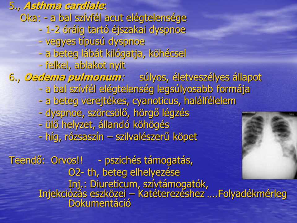 5., Asthma cardiale: Oka: - a bal szívfél acut elégtelensége. - 1-2 óráig tartó éjszakai dyspnoe. - vegyes típusú dyspnoe.