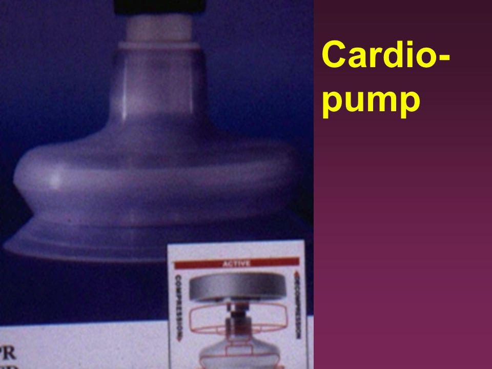 Cardio-pump