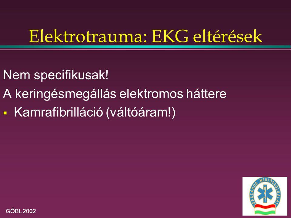 Elektrotrauma: EKG eltérések