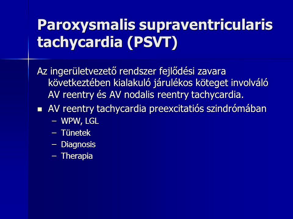 Paroxysmalis supraventricularis tachycardia (PSVT)