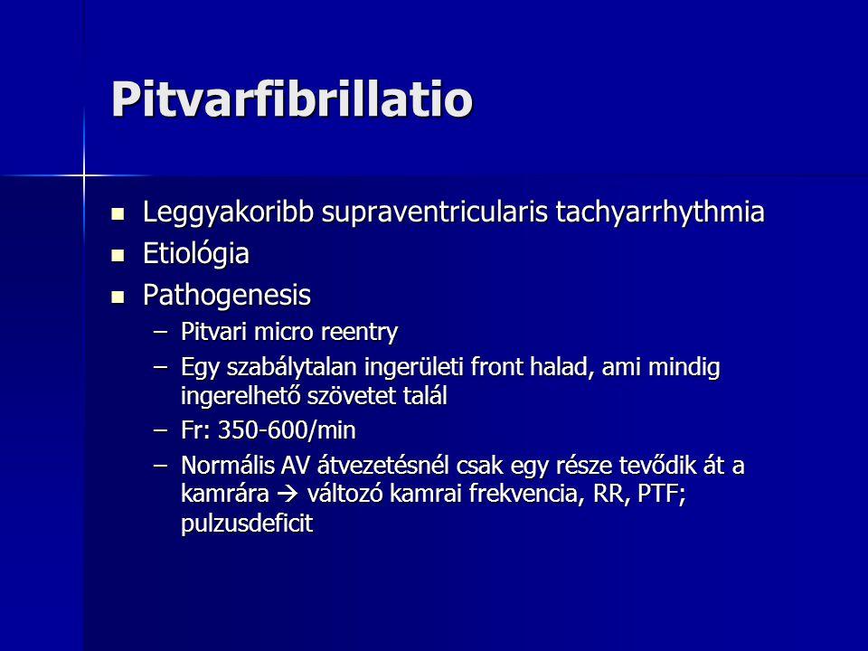 Pitvarfibrillatio Leggyakoribb supraventricularis tachyarrhythmia