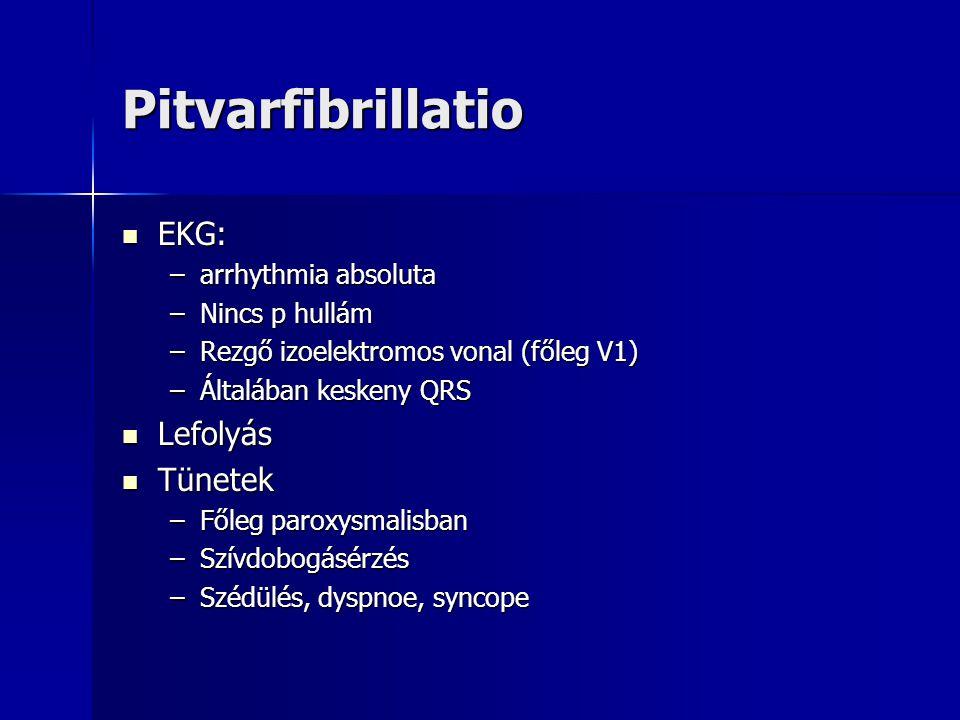 Pitvarfibrillatio EKG: Lefolyás Tünetek arrhythmia absoluta