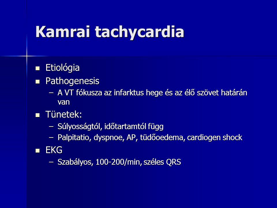 Kamrai tachycardia Etiológia Pathogenesis Tünetek: EKG