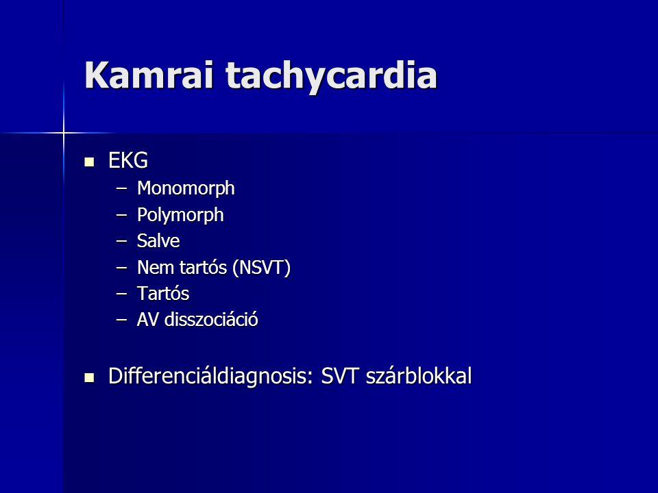Kamrai tachycardia EKG Differenciáldiagnosis: SVT szárblokkal