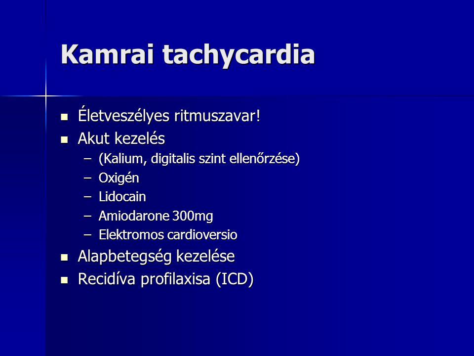 Kamrai tachycardia Életveszélyes ritmuszavar! Akut kezelés
