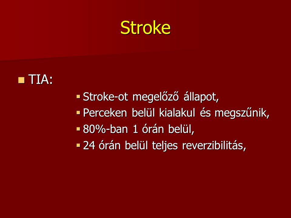Stroke TIA: Stroke-ot megelőző állapot,