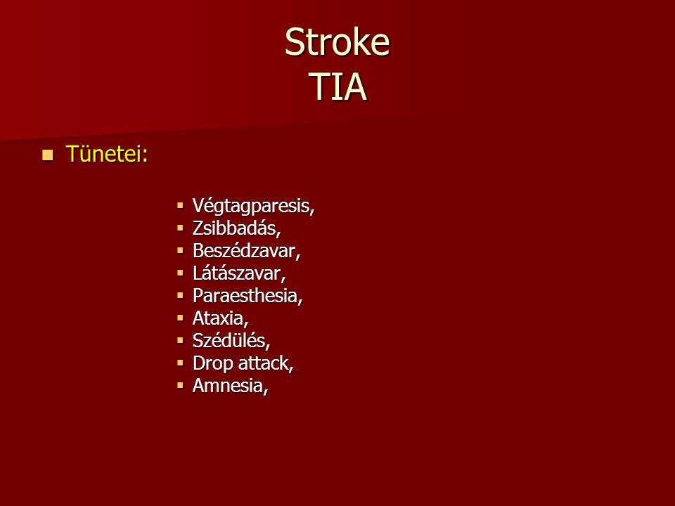 Stroke TIA Tünetei: Végtagparesis, Zsibbadás, Beszédzavar, Látászavar,