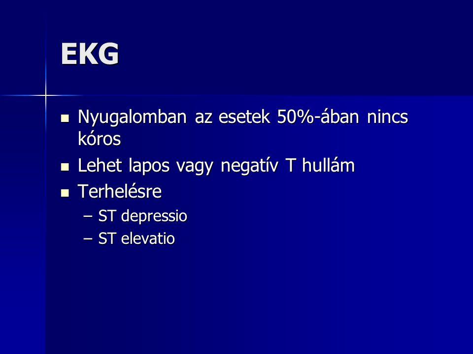 EKG Nyugalomban az esetek 50%-ában nincs kóros