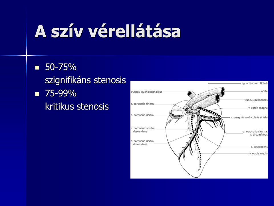 A szív vérellátása 50-75% szignifikáns stenosis 75-99%