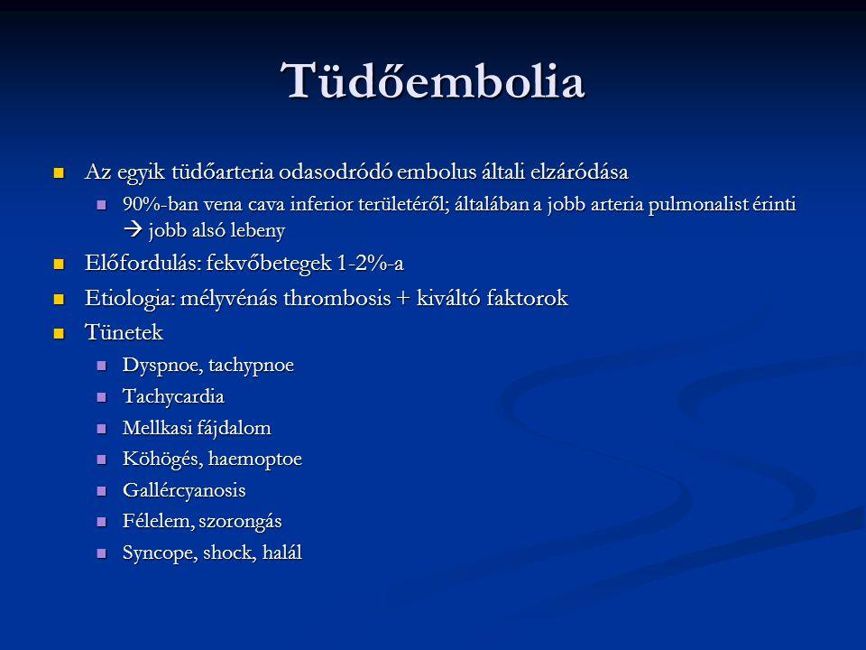Tüdőembolia Az egyik tüdőarteria odasodródó embolus általi elzáródása