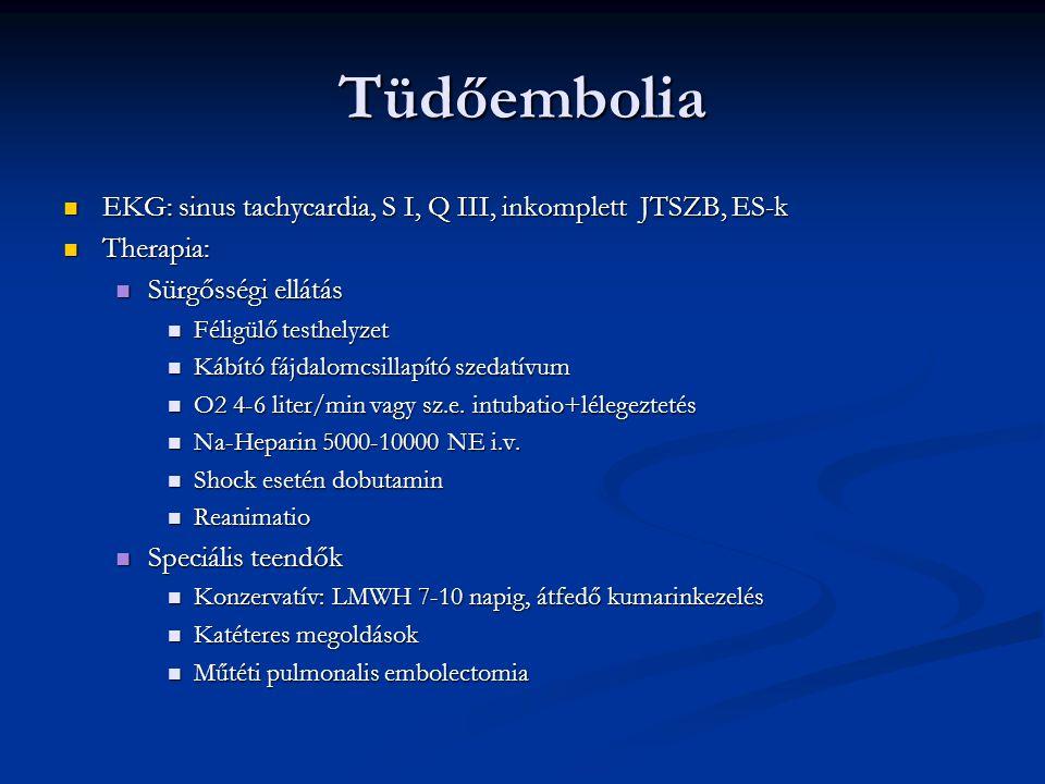 Tüdőembolia EKG: sinus tachycardia, S I, Q III, inkomplett JTSZB, ES-k