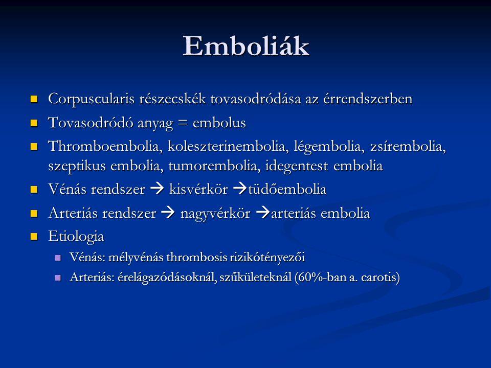 Emboliák Corpuscularis részecskék tovasodródása az érrendszerben