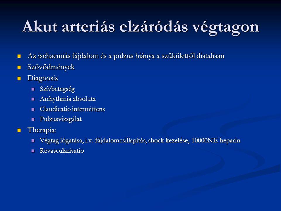 Akut arteriás elzáródás végtagon