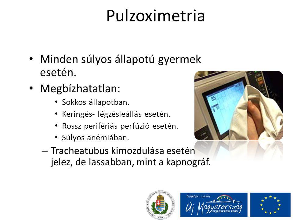 Pulzoximetria Minden súlyos állapotú gyermek esetén. Megbízhatatlan: