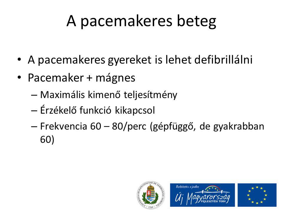 A pacemakeres beteg A pacemakeres gyereket is lehet defibrillálni
