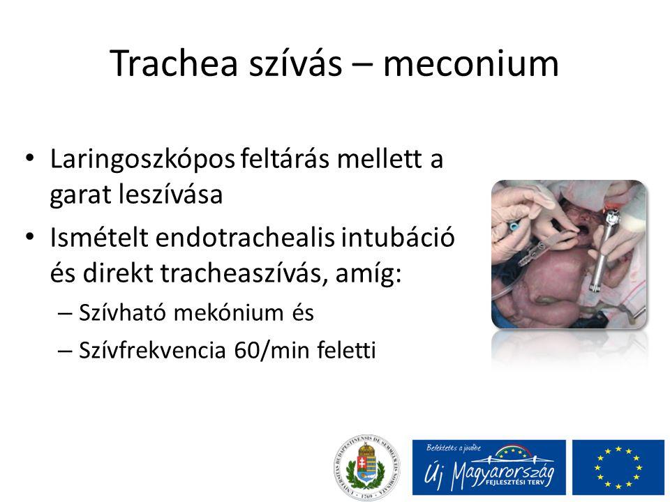 Trachea szívás – meconium