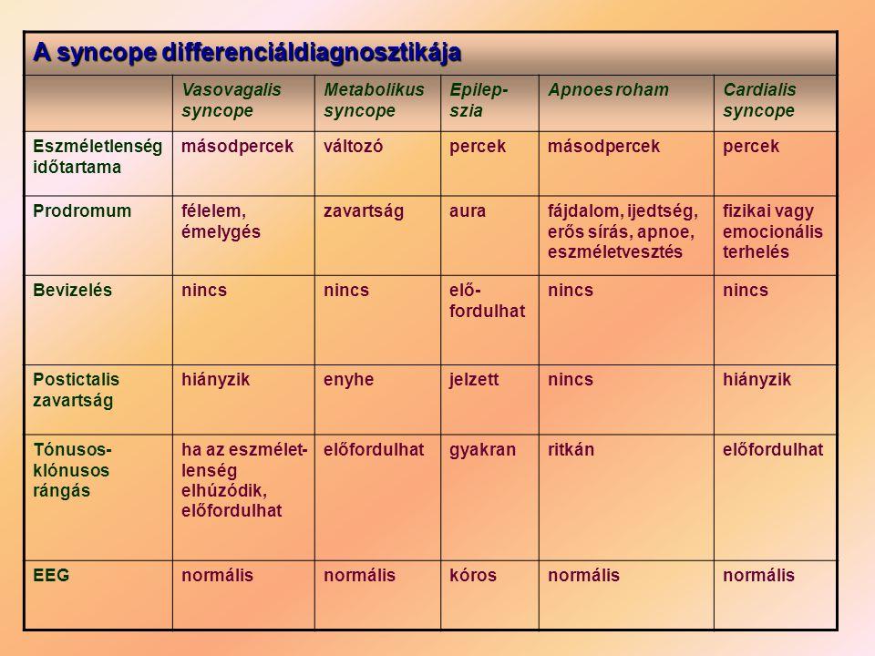 A syncope differenciáldiagnosztikája
