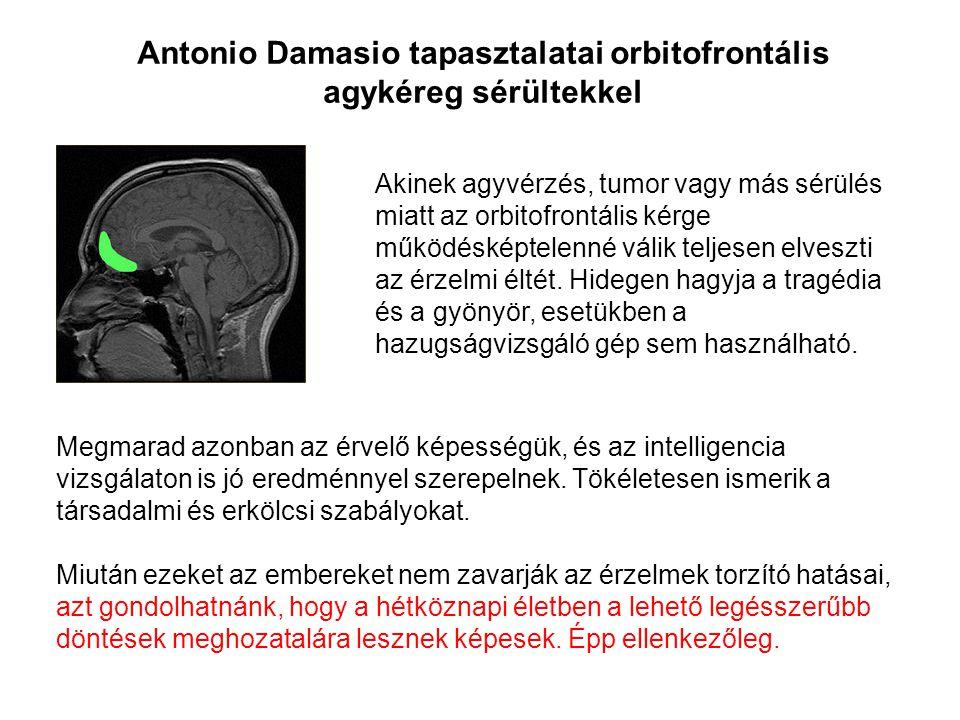 Antonio Damasio tapasztalatai orbitofrontális agykéreg sérültekkel