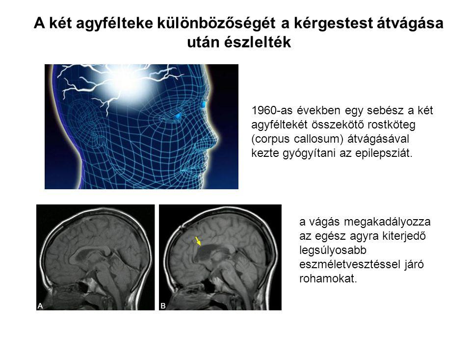 A két agyfélteke különbözőségét a kérgestest átvágása után észlelték