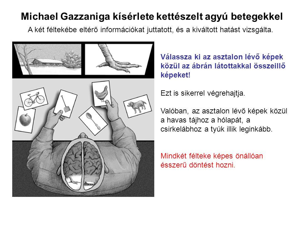 Michael Gazzaniga kísérlete kettészelt agyú betegekkel