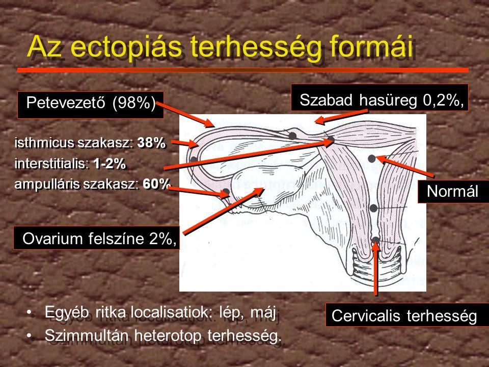 Az ectopiás terhesség formái